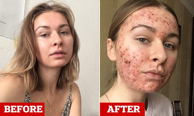 Woman, 22, shares candid selfies of severe acne over her entire face