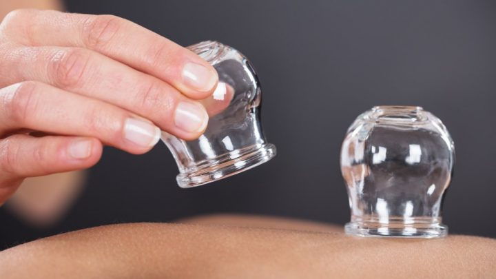 The reason pro athletes are so into cupping therapy