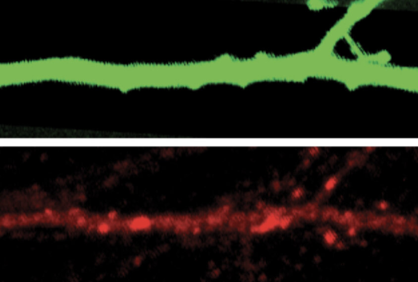 Lithium may treat behavior linked to autism gene