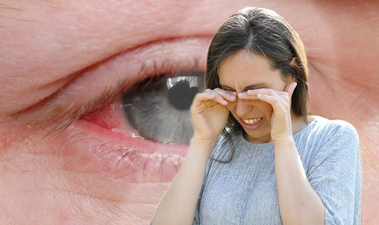 Hay fever symptoms: How to tell your itchy eyes are a sign of a more serious condition