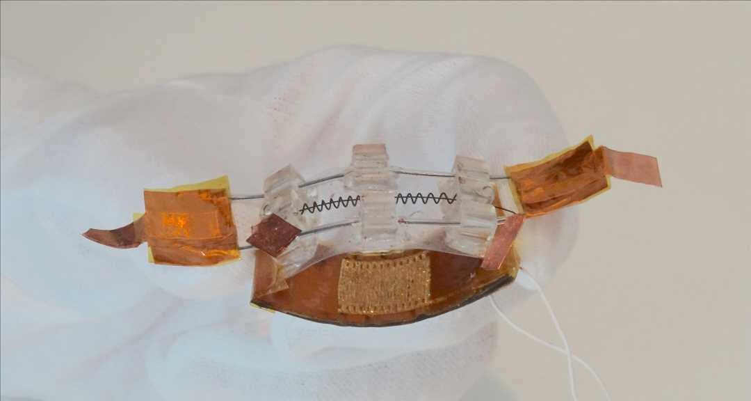 Researchers develop novel device to improve performance of underactive bladders