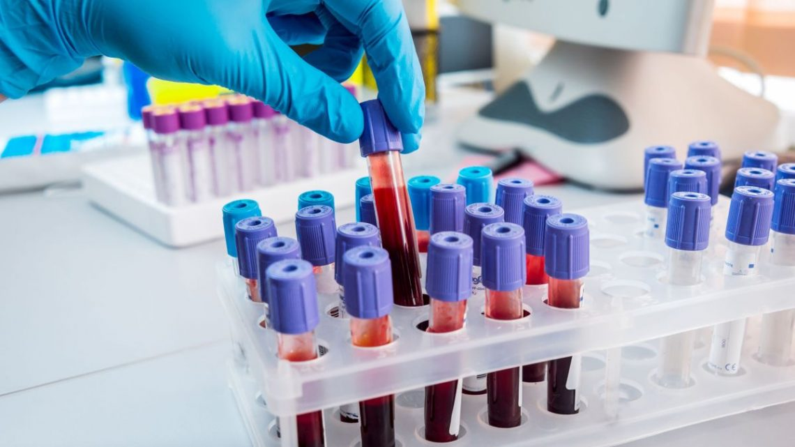 FDA releases more stringent rules for COVID-19 antibody tests
