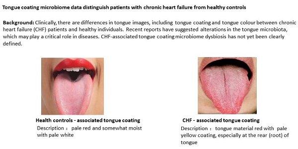 Tongue microbes provide window to heart health