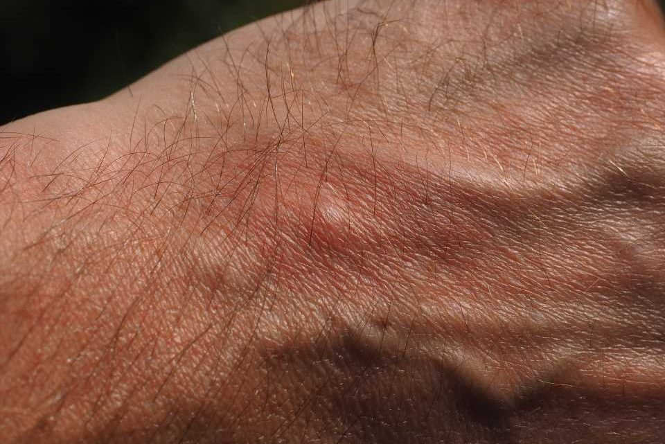 Study ties chronic itch to sleep loss and possible signal of increased heart disease risk