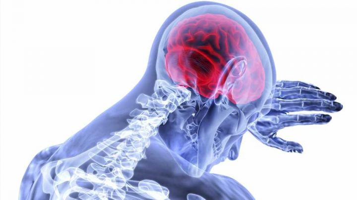 Heart structure may play role in stroke risk disparities between Black and white people