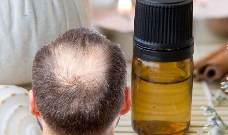 Hair loss treatment: Cinnamon essential oil shown to rival minoxidil in effectiveness