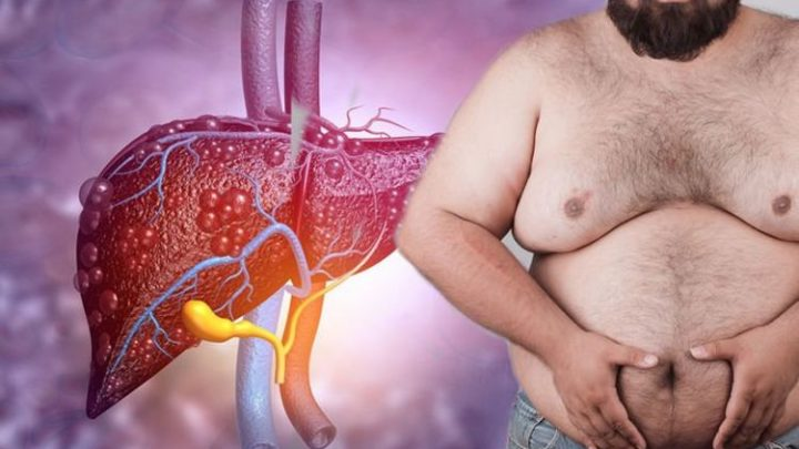Fatty liver disease: Gynecomastia may occur due to hormonal imbalance – what is it?