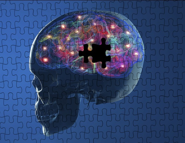 New approach could revolutionize treatment, prevention of Parkinson's disease